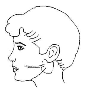 小児反復性耳下腺炎とは図1